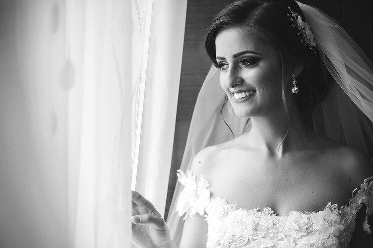 Sbiancamento dentale sposa sposi matrimonio