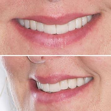Caso reale di applicazione di faccette dentali