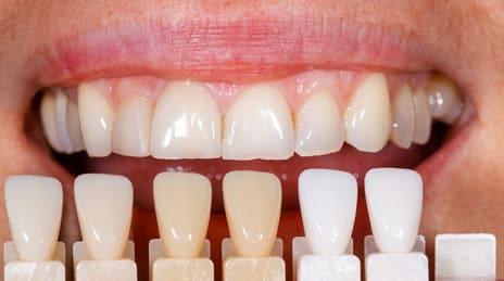 Faccette Dentali in ceramica a confronto